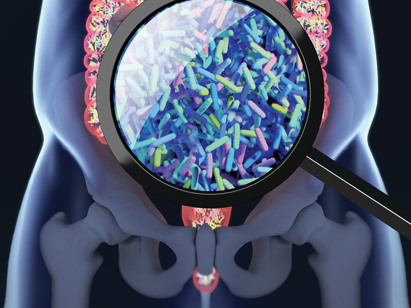 Two Bacteria Species Connected to Certain Colon Cancers
