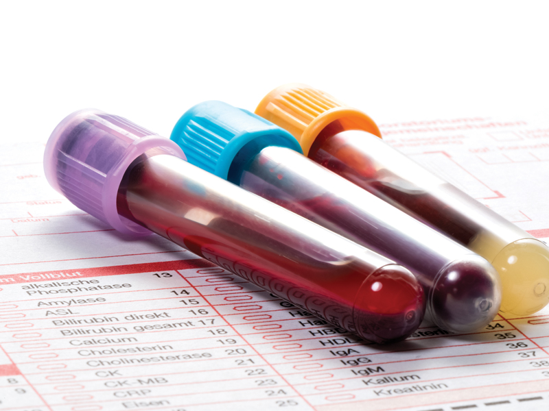 blood test to detect cancer